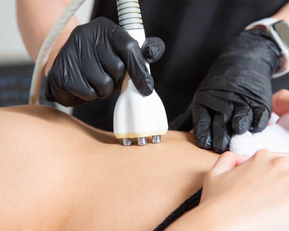 diamond polar skin tightening treatment on stomach