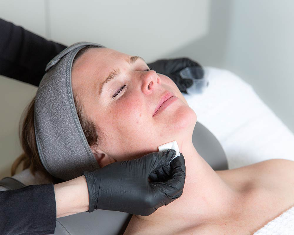 woman receiving a painless chemical peel